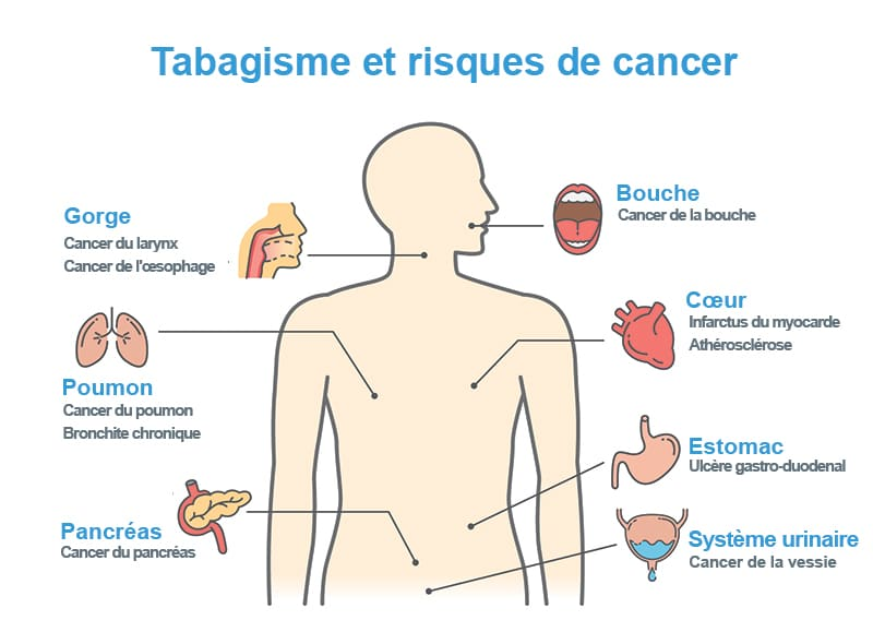Risque de cancer dus a la cigarette